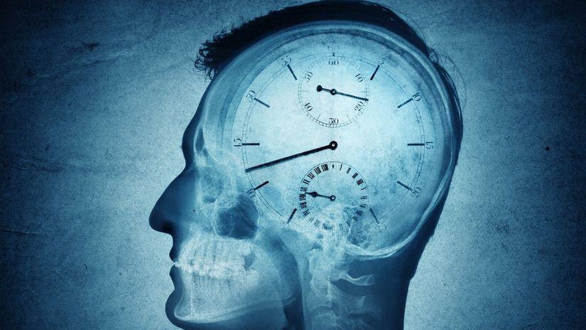 čas, mozog, mŕtvica