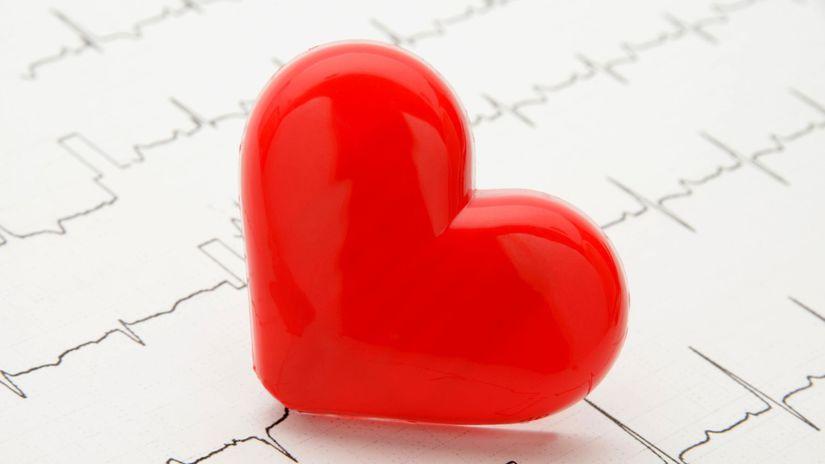 srdce, srdová arytmia, tep, prekvencia, EKG