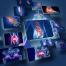 Bolesť kĺbov je častá a nepríjemná