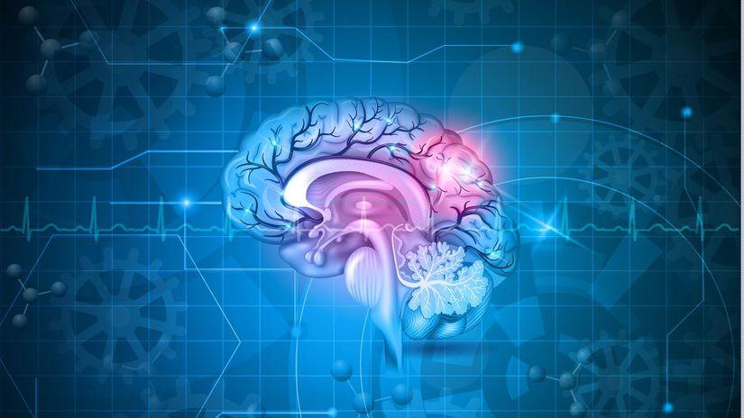 mozog, mozgová príhoda,