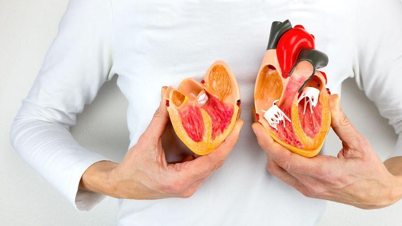 srdce, zdravie, model srdca, infarkt