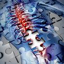 osteoporóza, chrbtica, kosti,
