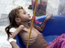 jemen, dievča, dieťa, hladomor