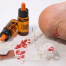 rana, krv, náplasť, päta, poranenie, zranenie, dezinfekcia