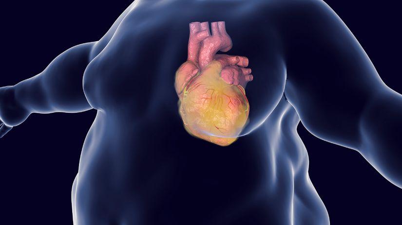 obezita, infarkt