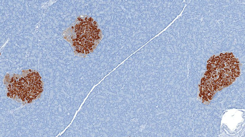pankreaticke ostrovceky