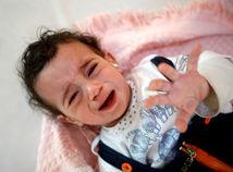 jemen, saná, dievčatko, cholera