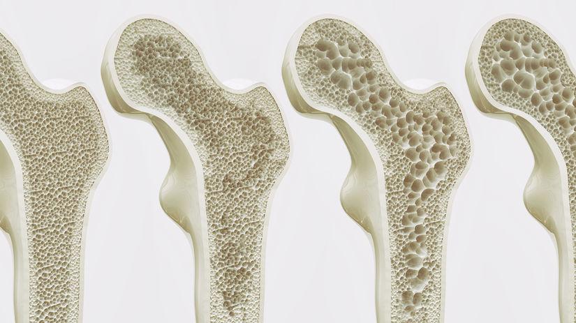 kosť, osteoporóza, rednutie kostí