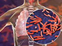 baktérie, tuberkulóza, očkovanie