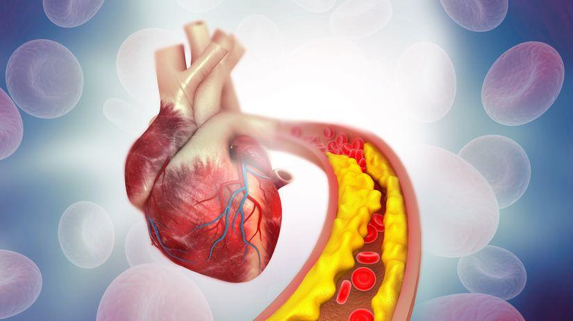 diabetes, srdce