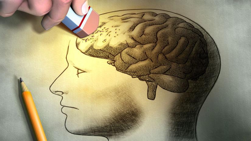 mozog, pamäť, Alzheimer