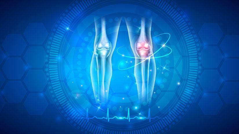 koleno, kĺby, osteo, ortopéd