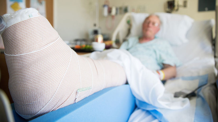 pacient, nemocnica, noha, obväz, zlomenina,...