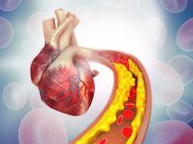 srdce, cholesterol
