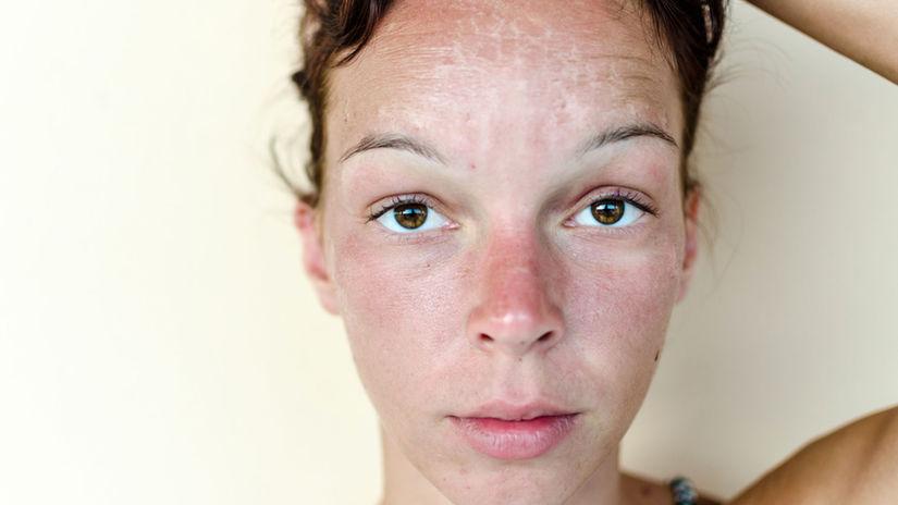 Slnkom podráždená problematická pokožka má...