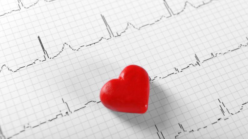 srdce, pulz, EKG