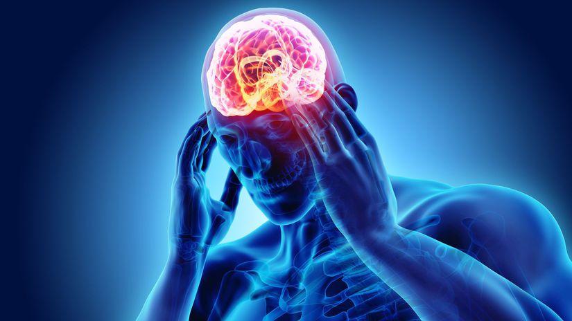 migréna, bolesť hlavy, hlava, mozog,