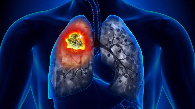 pľúca, rakovina, karconóm pľúc