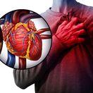 srdce, cieva, cholesterol, krv, infarkt