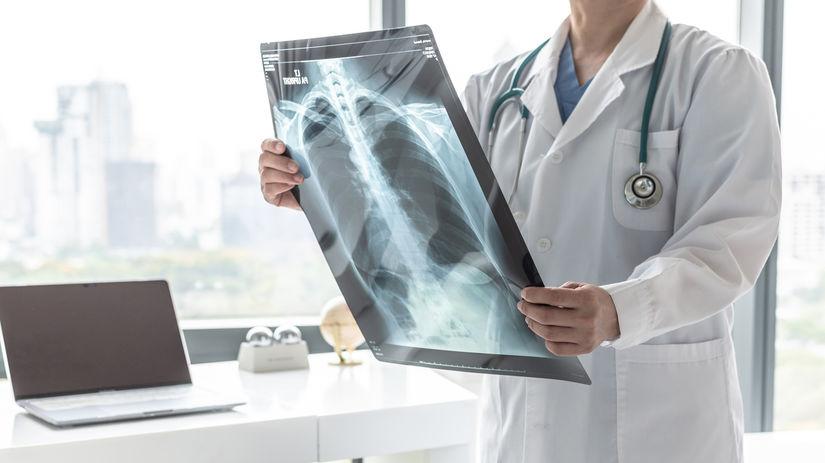 doktor, röntgenová snímka, pľúca