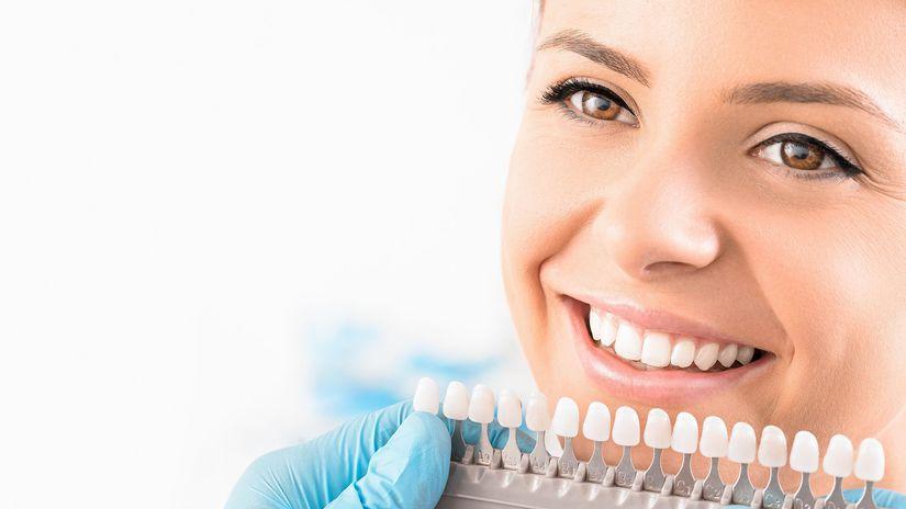 biele zuby, test, odtieň, zubár