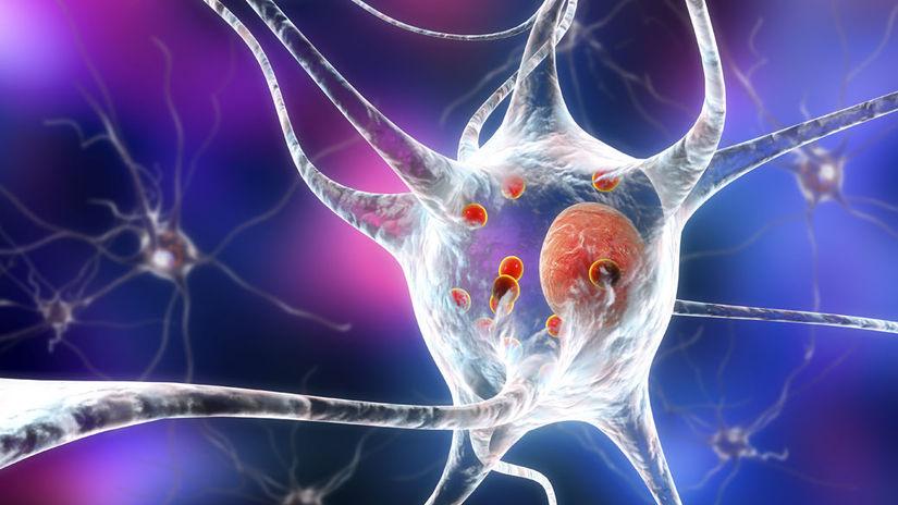 neurón, Parkinson