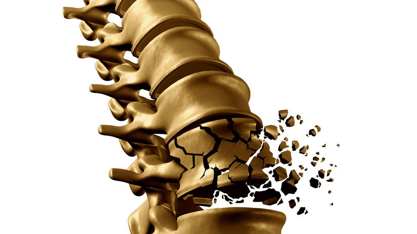 chrbtica, stavec, lámanie, osteoporóza