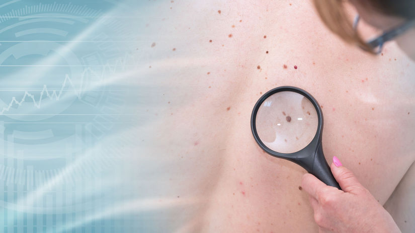 melanóm, znamienko, rakovina kože, lupa