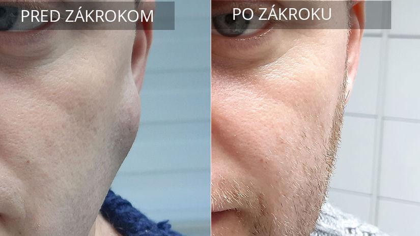 lipóm, hrčka, nádor na koži, chirurgia, tuková...