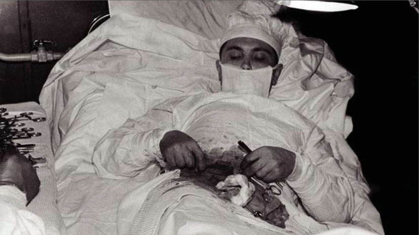 Leonid Rohozov, samooperácia, slepé črevo, doktor