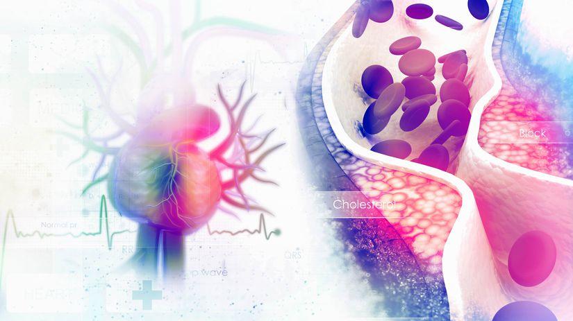 srdce, cholesterol, infarkt, problémy,...