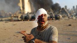 libanon bejrút výbuch explózia muž zranenie krv