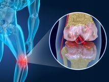 artróza, koleno, bolesť, kĺb