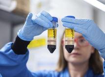Na Slovensku potvrdili už viac ako 100-tisíc prípadov koronavírusu
