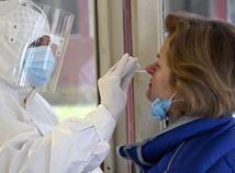 Trebišov Test Antigénový Odber Koronavírus