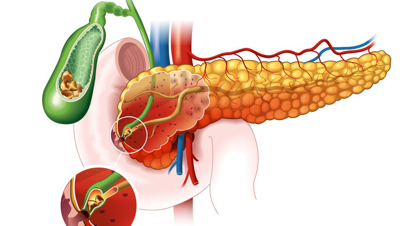 pankreas, problém, pankreatitída