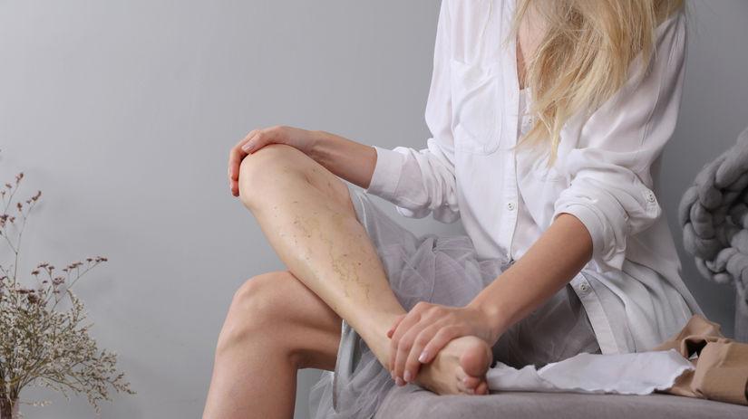 varixy, kŕčové žily, bolesť