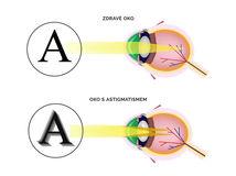 astigmatismus, zrak