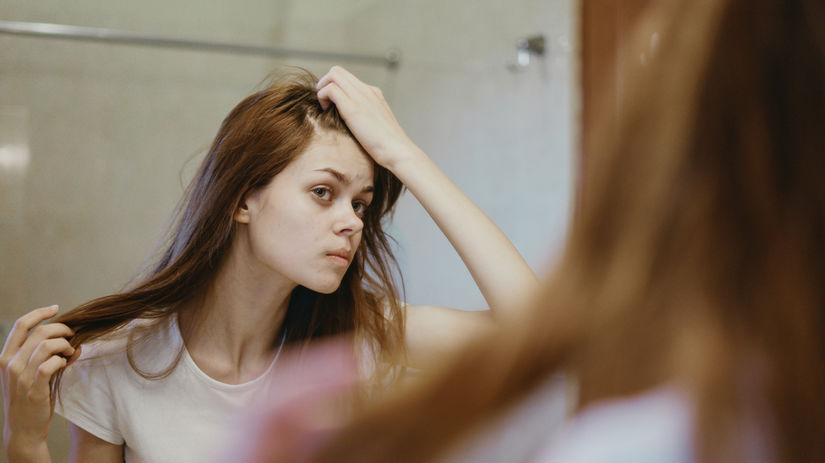 vlasy, žena, problém, zrkadlo, mastné,