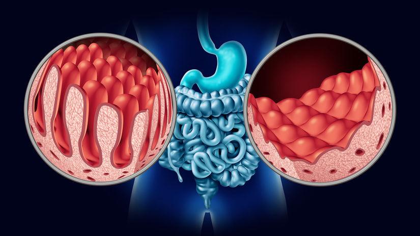 celiakia, zdravé črevo, poškodené črevo, klky,...