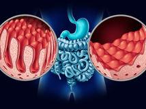 celiakia, zdravé črevo, poškodené črevo, klky, lepok