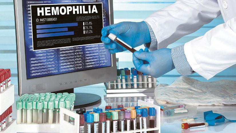 hemofília, skúmavky, ruky, rukavice,
