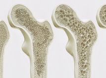 kosť, kosti, osteoporóza, rednutie kostí