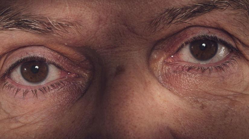 oči, zrak, senior, videnie, degenerácia makuly,...