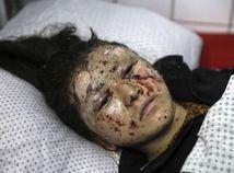 Afganistan / Kábul / Dieťa / Zranenie /
