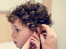 hluchý, nepočujúci, ŤZP, nedoslýchavosť, dieťa, načúvací aparát