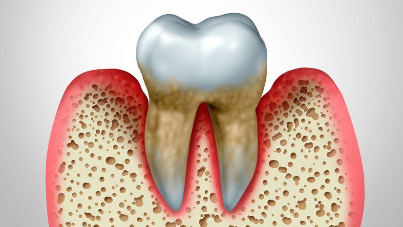 parodontitída, ďasno, zub, choroba, zápal