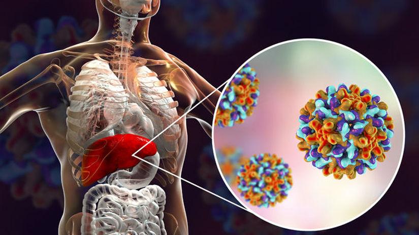 pečeň, hepatitída typu B