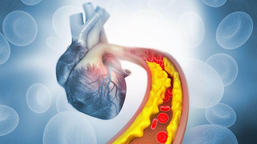 hypertenzia, upchatie, infarkt, tuk, vysoký tlak