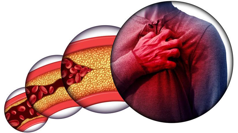 cholesterol, upchávanie ciev, infarkt